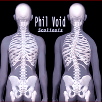 Phil Void - Scoliosis